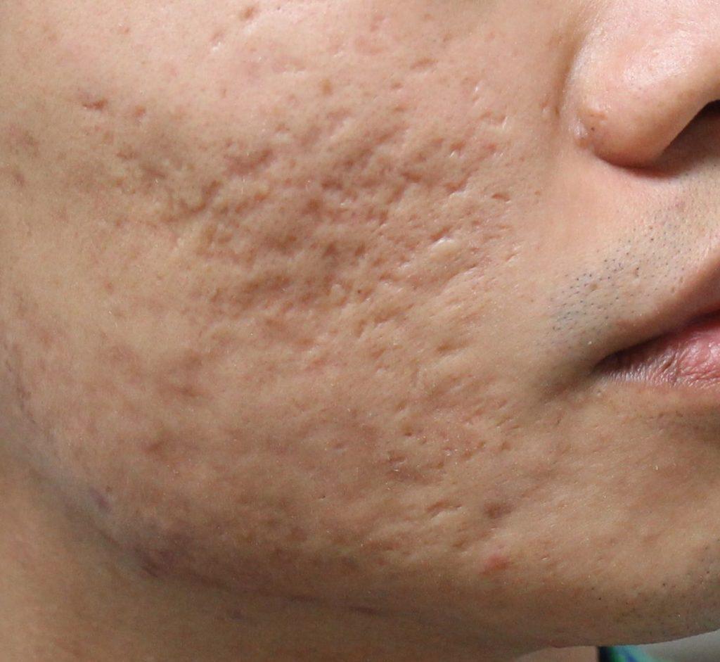 Tips Rawatan Parut Berlubang Tanpa Laser T9 Skincare