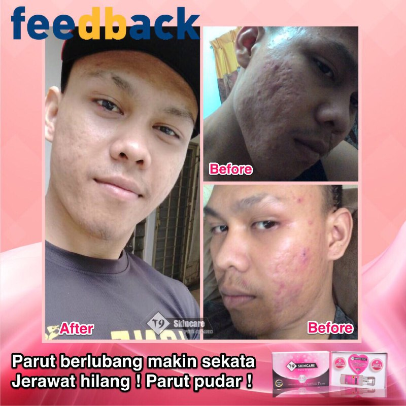 Tips Hilangkan Jerawat T9 Skincare